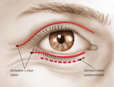 Dr Najjar Chirurgien Maxillo-Facial Blepharoplastie