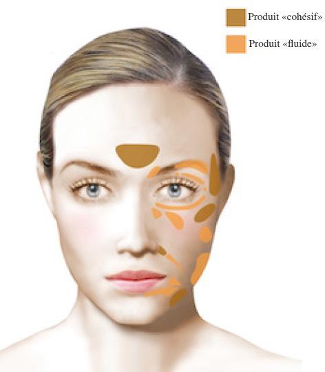 Dr Najjar Chirurgien Maxillo-Facial Injections Hyaluronique