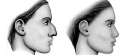 Dr Najjar Chirurgien Maxillo-Facial Rhinoplastie